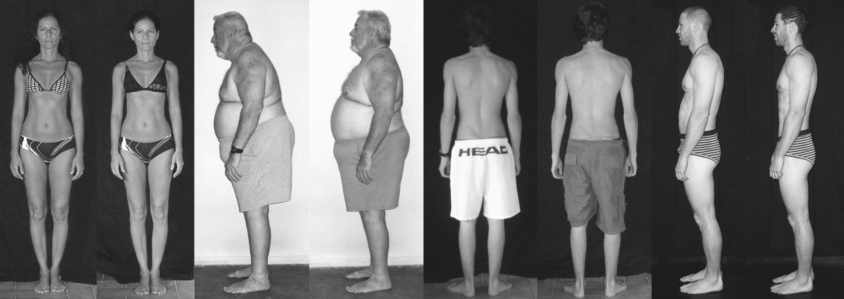 Results before & after 10 Rolfing® sessions.
